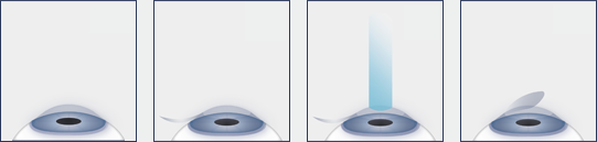 LASIK Diagram