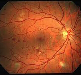 Detecting Diabetic Retinopathy