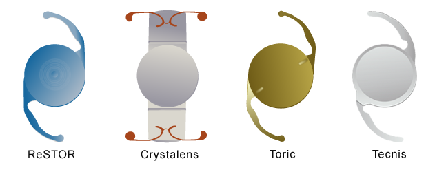 Accommodating intraocular lens implant