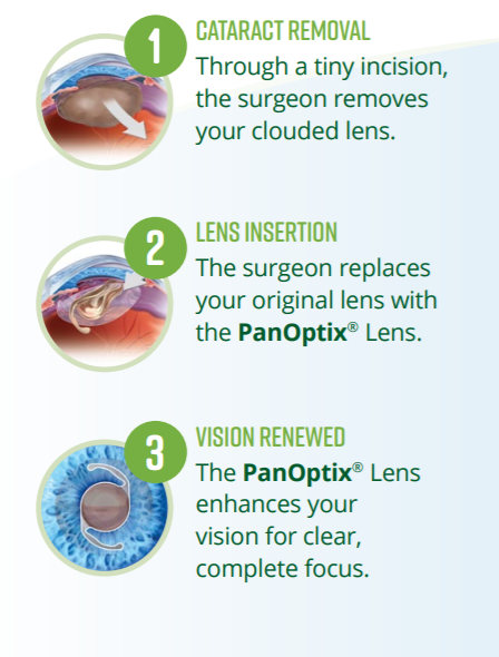 PIctures of Cataract Removal