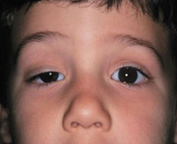 Child with Congenital Ptosis